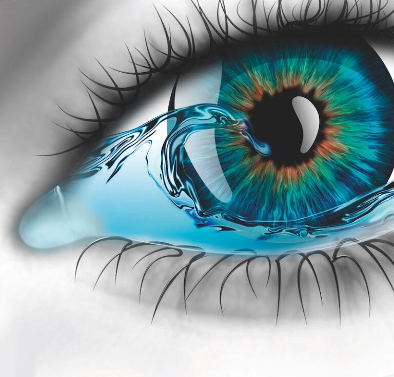 Kuivat silmät-viisi vinkkiä